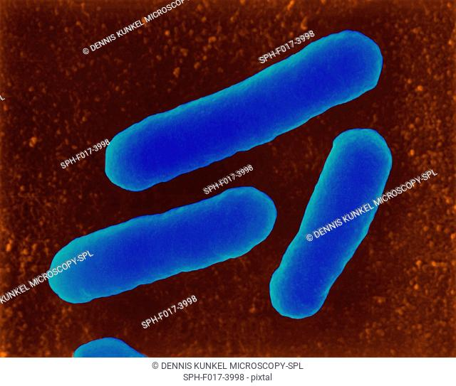 Coloured scanning electron micrograph (SEM) of E. coli (Escherichia coli), dividing, haemorrhagic 0157:H7 strain. Escherichia coli is a Gram-negative