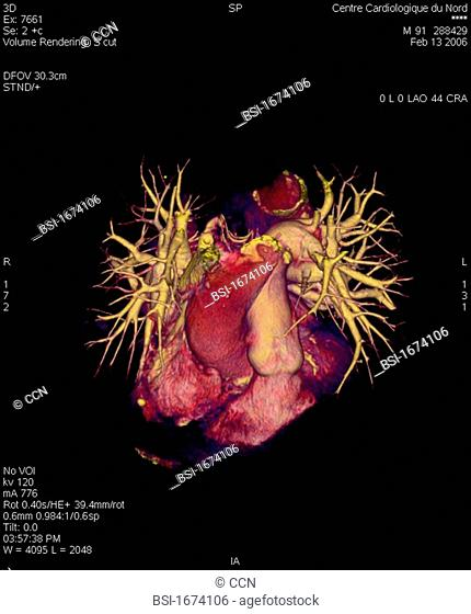 Angiography scanner 3D. Visualization of the heart, aortic arch and pulmonary vascularization arteries and arterioles, veins and pulmonary venules