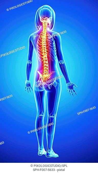 Back pain, computer artwork