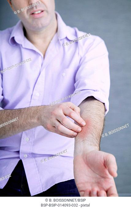 Man scratching his arm