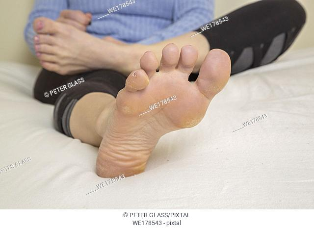Close-up of a young woman's feet and legs with her torso behind them, as she sits on her bed