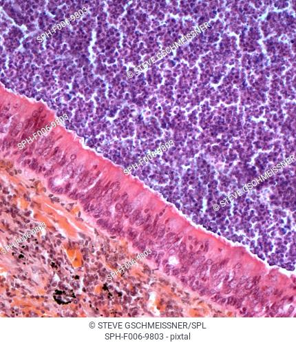 Acute bronchitis. Light micrograph of a section through a bronchus (airway) affected by acute bronchitis. The lumen is filled with pus (purple) consisting...