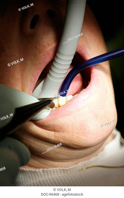 A dentist treats a female patient with a drill and a suction extractor