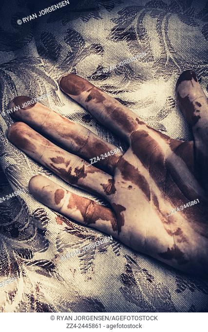 Dark dramatic thriller concept of a deceased mans hand laying on a bedspread with splatters of blood. Touch of death