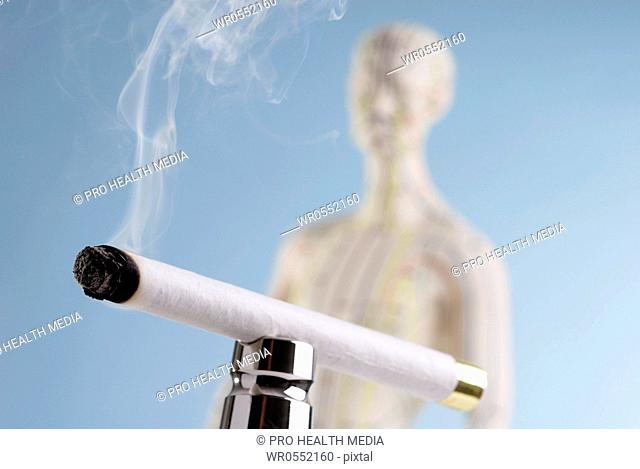 Moxibustion - cigar and acupuncture doll