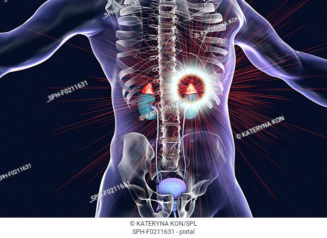 Treatment of adrenal gland disease, illustration