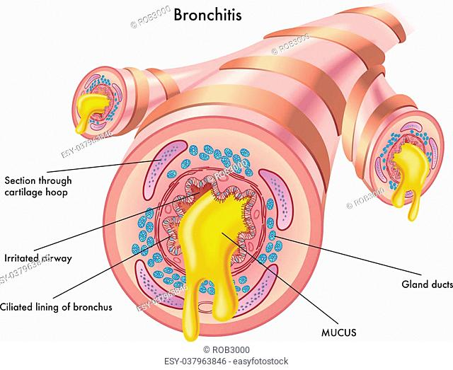 medical illustration of the effects of the bronchitis