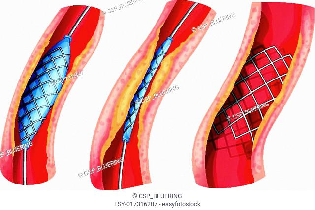 Stent used to open blocked artery