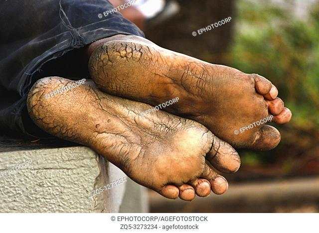 Mans with dry and deeply cracked heels resting