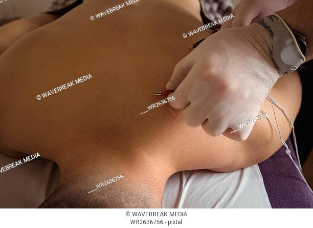 Physiotherapist performing electro dry needling on back of a patient