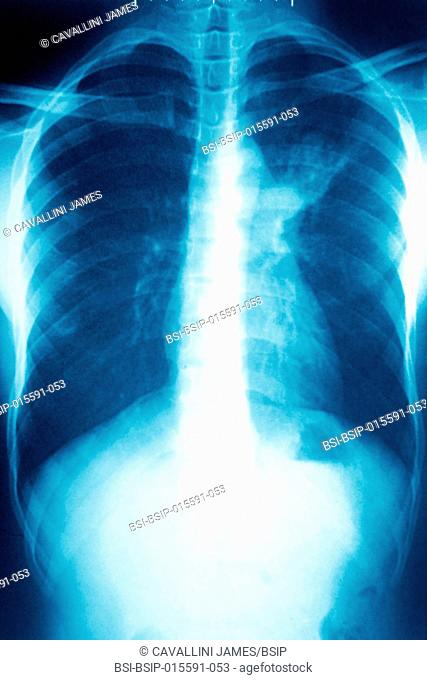 Pulmonary tuberculosis, seen on a frontal chest x-ray