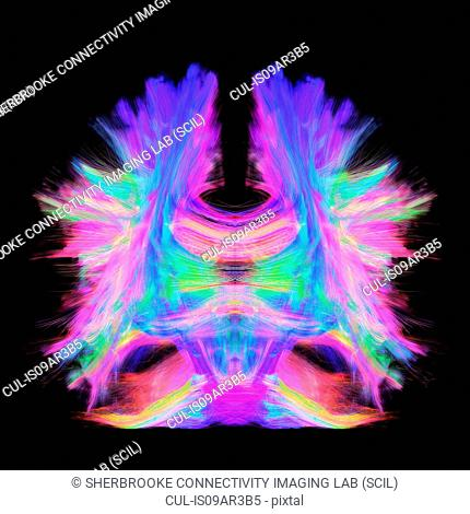 Full brain tractography with artistic color. This is a full brain tracking coming from a super-resolution reconstruction of 0.6 cubic mm. Front view