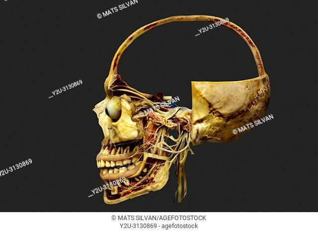 Human Skull Cut in Half
