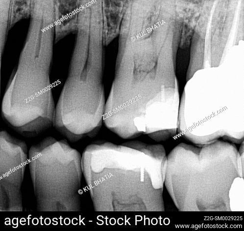 A dental xray with crown, cavities, and root canal