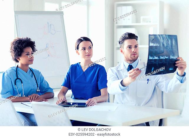 radiology, people and medicine concept - group of doctors looking to and discussing x-ray image at hospital