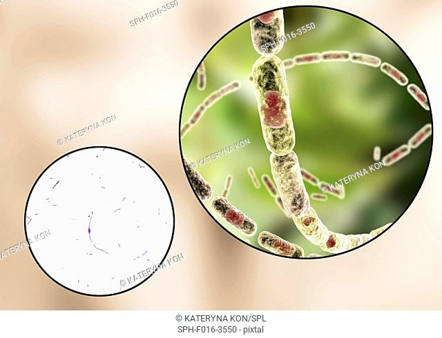 Anthrax bacteria, light micrograph and computer illustration. Anthrax bacteria (Bacillus anthracis) are the cause of the disease anthrax in humans and livestock