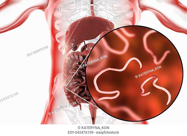 helminthiasis és enterobiasis)
