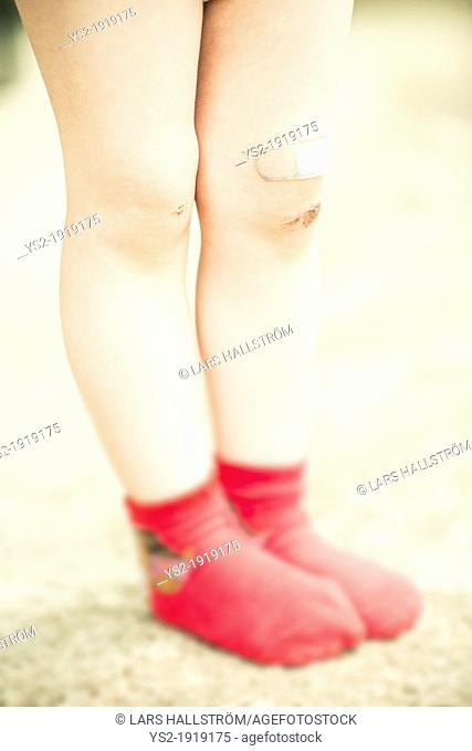 Girl 3 years old with red socks and scrape wound on her legs