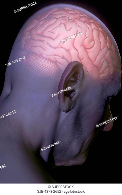 Anatomical model with an illuminated brain representing head pain