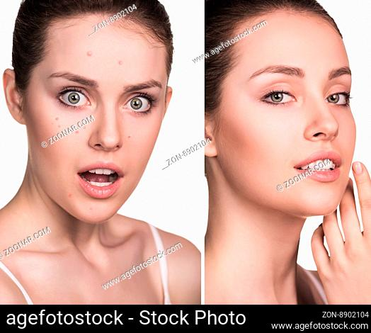 Comparative photos of young woman with skin problems. Before and after treatment