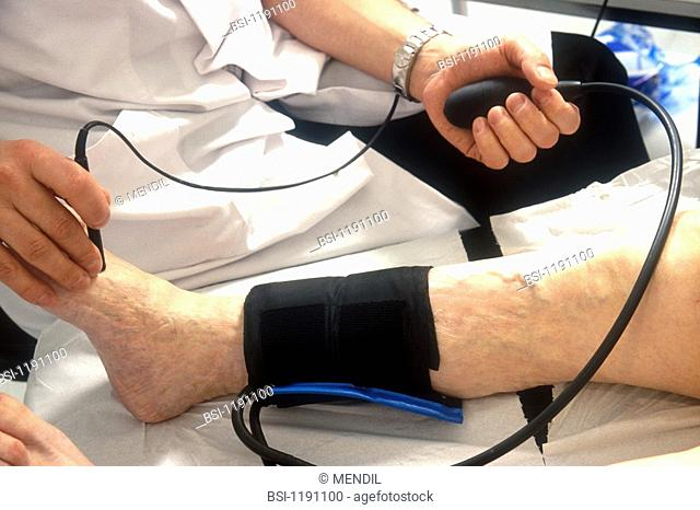 DOPPLER TEST OF A VEIN<BR>Photo essay from hospital.<BR>Measuring blood pressure with doppler ultrasound of artery