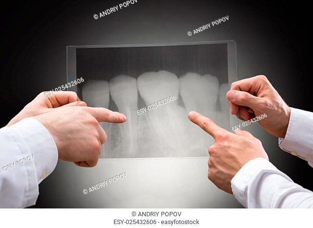 Close-up Of Two Doctors Examining Dental Xray