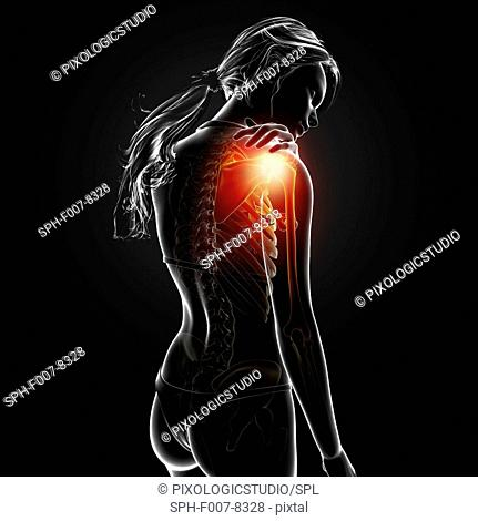 Shoulder pain, computer artwork