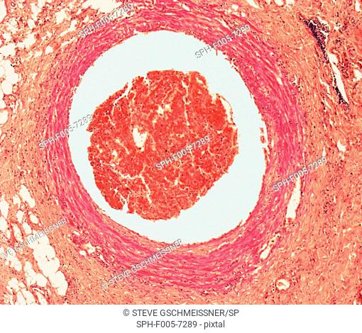 Blood clot. Light micrograph of a section through an arterial thrombus. Blood clots can form in an intact vessel that contains fatty deposits or one that is...