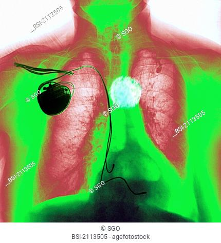 PACEMAKER<BR> <BR>Patient wearing a pacemaker, and affected by a hiatal hernia