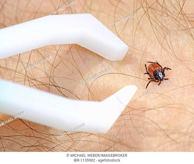 Tick tweezer and Deer Tick or Black-legged Tick (Ixodes scapularis Say) on human skin