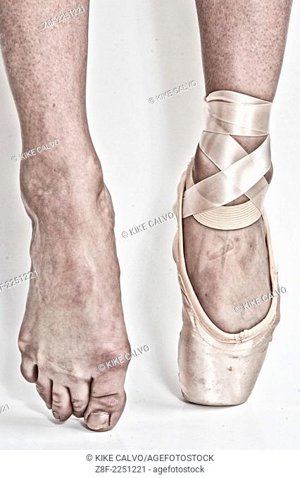 Feet of a ballerina, one with a ballet pointe shoe and the other barefoot