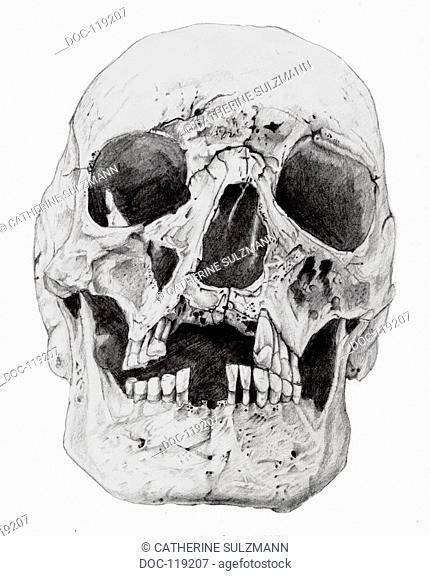 skull leprosy