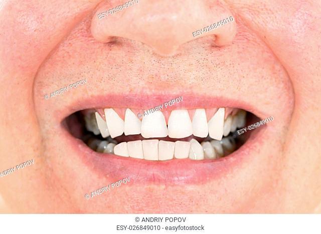 Close-up Of A Senior Man Showing His Teeth