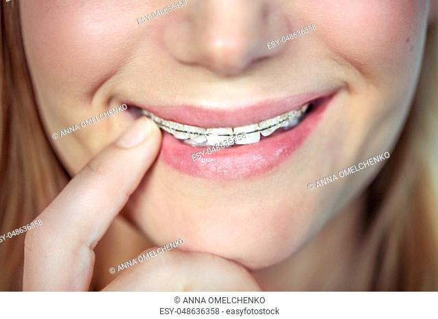 Closeup photo of a beautiful smile of a teen girl with braces, aesthetic dentistry, contemporary fixing of the teeth, health and dental care