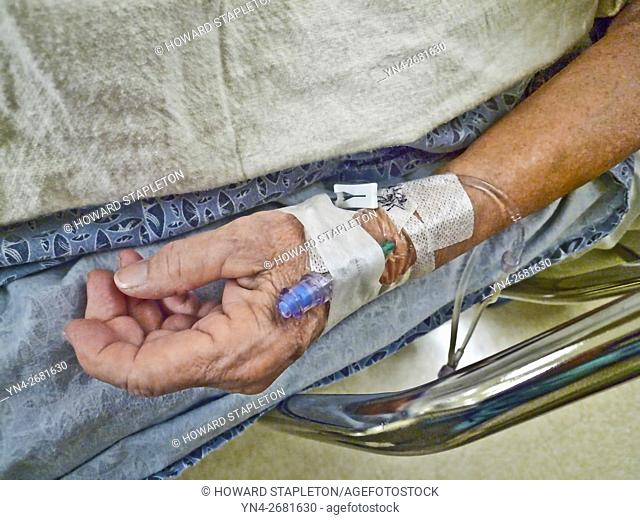 A patient receives an IV (Intravenous therapy) in a hospital prior to surgery