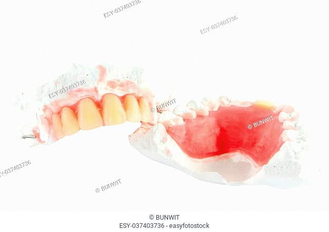 Denture teeth with wax model isolate on white background