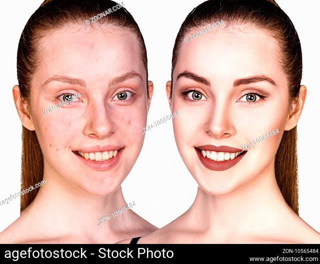 Comparison portrait of young girl with problematic skin before and after treatment and make-up