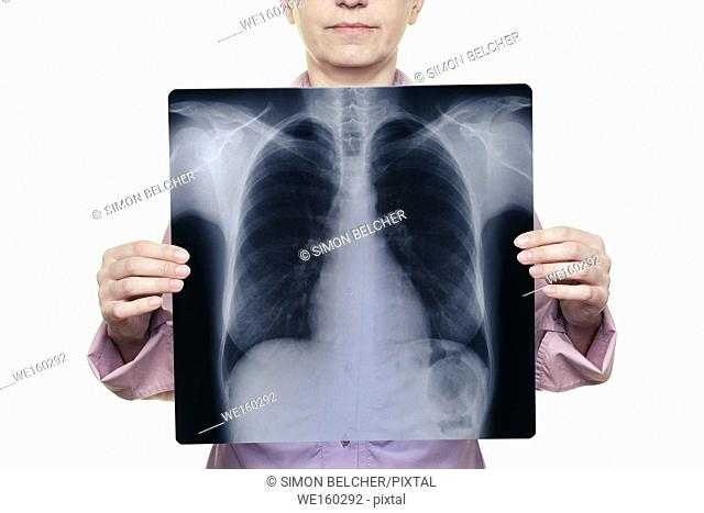 Woman Holding a Chest X-ray in Front of Her Body
