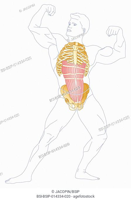illustration of the right rectus muscle in a body builder. it is compressed which causes respiratory suffocation