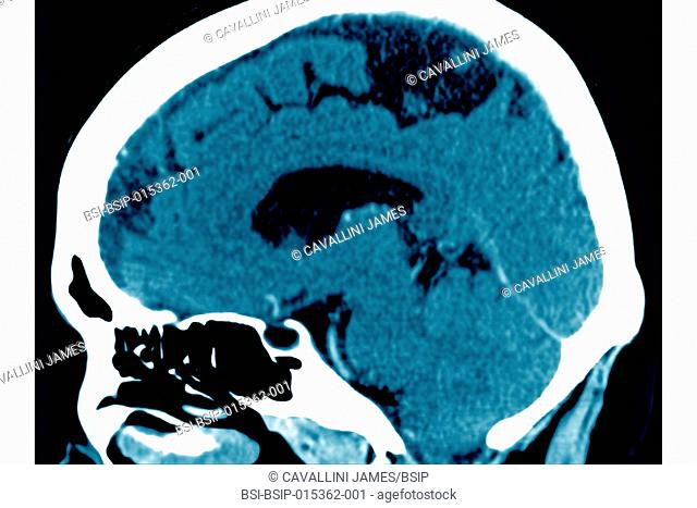 Cerebrovascular accident caused by thrombosis of an artery in the left hemisphere. Saggital plane cross-section brain scan