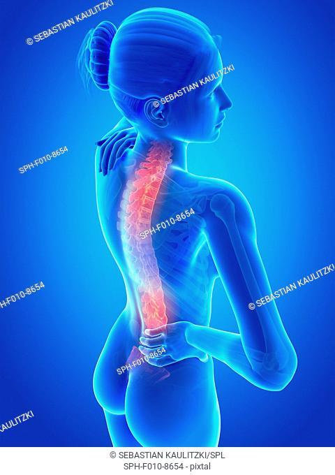 Human back pain, computer illustration