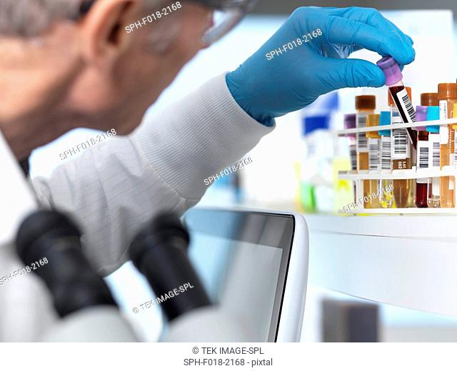 MODEL RELEASED. Scientist preparing human medical samples for testing and analysis in the laboratory