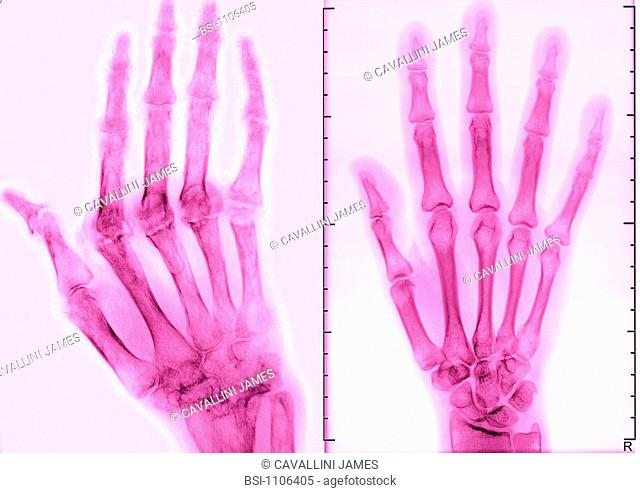 RHEUMATOID ARTHRITIS, X-RAY<BR>Rhumatoid arthritis. Here the condition has caused ankylosis and bone deformation of the right hand