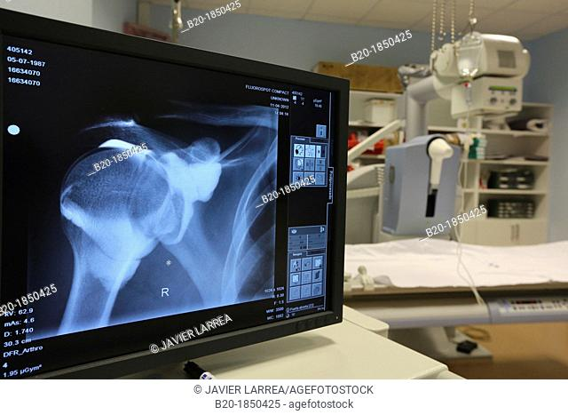 Shoulder X-ray, Radiology Department, Donostia Hospital, San Sebastian, Donostia, Gipuzkoa, Basque Country, Spain