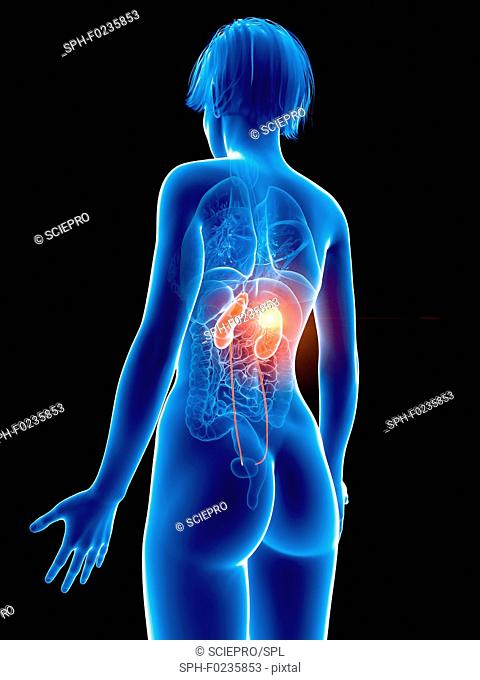 Illustration of a woman's painful kidney
