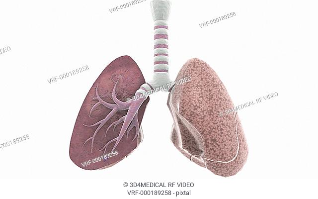 Animation depicting a zoom in on the lungs with a section of the right lung removed to show the inner bronchi