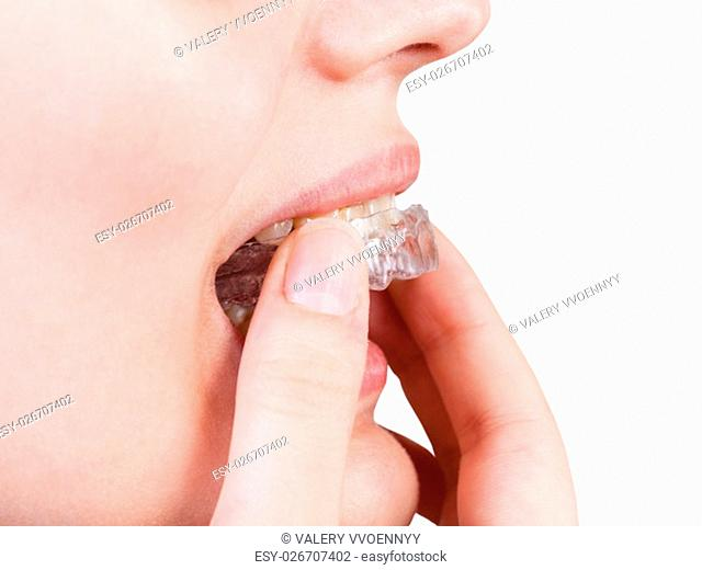 girl puts clear aligner on teeth for orthodontic correction of bite isolated on white background