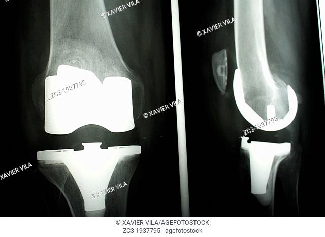 Radiographic knee prostheses, Isère, Rhône-Alpes, France
