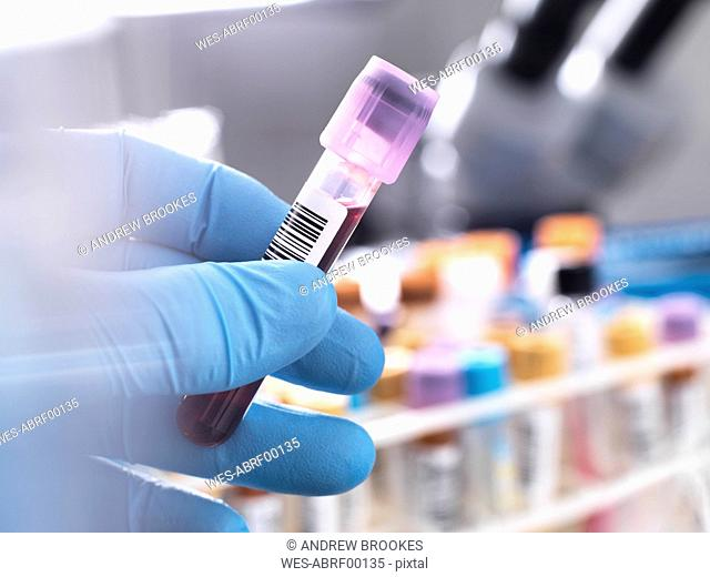 Medical technician preparing a human blood sample for clinical testing