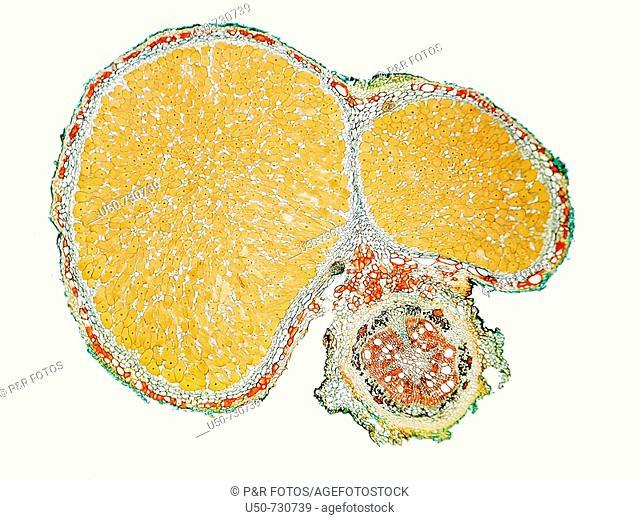 Bradyrhizobium, root nodule, optical microscope, 50 X, biological nitrogen fixation, Leguminosae